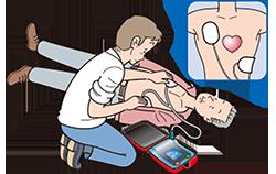 AEDのパッド装着
